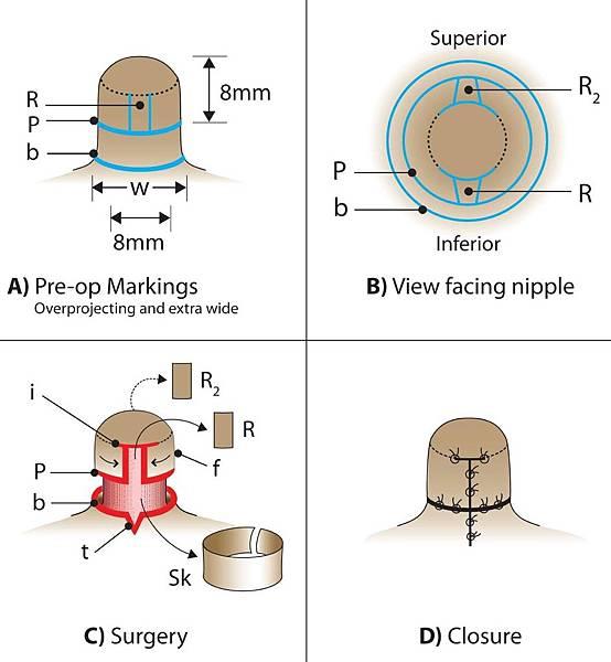 nipple-reduction.jpg