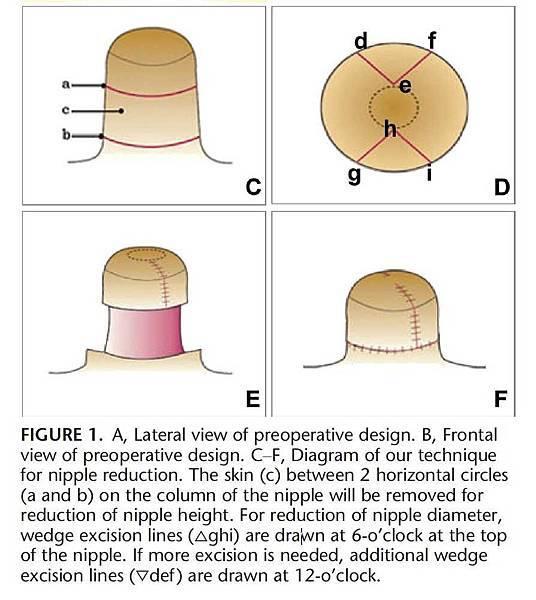 nipple-reduction-photo-figure-2 (1).jpg