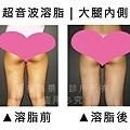 大腿內側超音波1.jpg