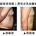 女乳&腹部超音波1.jpg