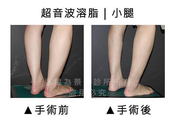 小腿1.jpg