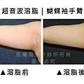 手臂超音波1.jpg