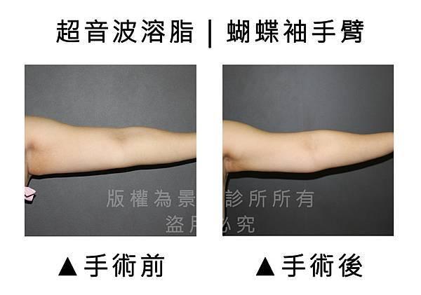 手臂超音波2.jpg