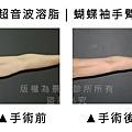 手臂超音波4.jpg