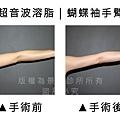 手臂超音波3.jpg