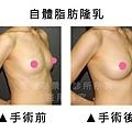 自體脂肪豐胸4.jpg