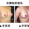 自體脂肪豐胸5.jpg