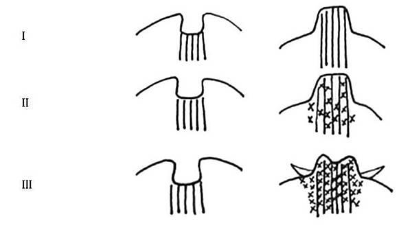 乳頭凹陷1.jpg