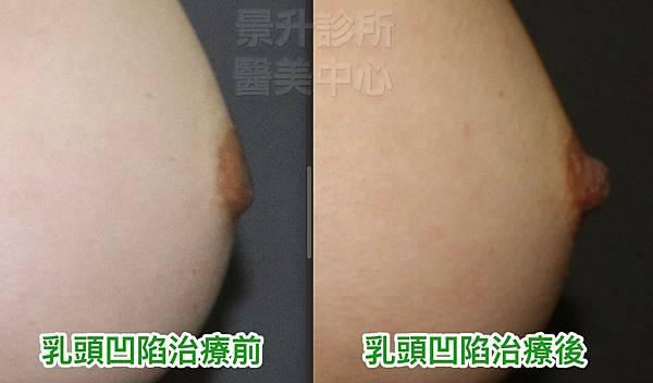 乳頭凹陷2-1.jpg