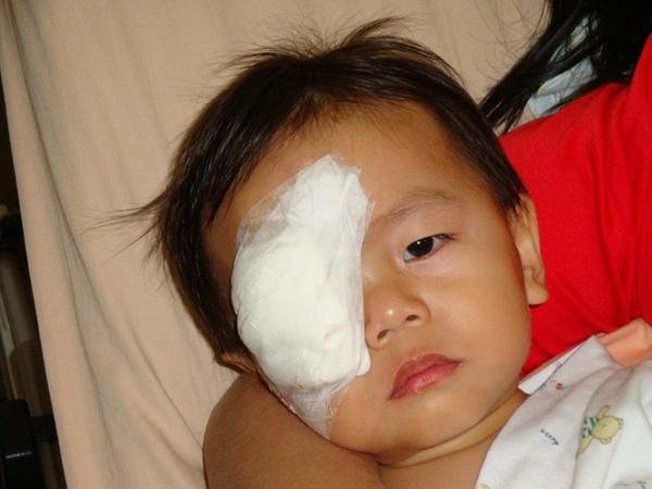 25492335:小罡的斜視手術