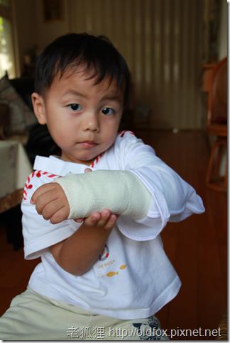 小罡的石膏手臂