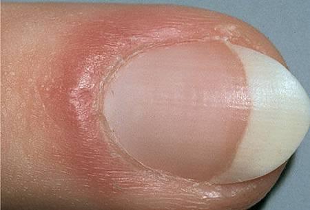 浮肿的指甲.jpg