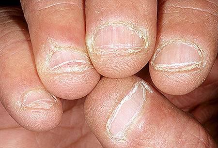 啮齿状的指甲.jpg