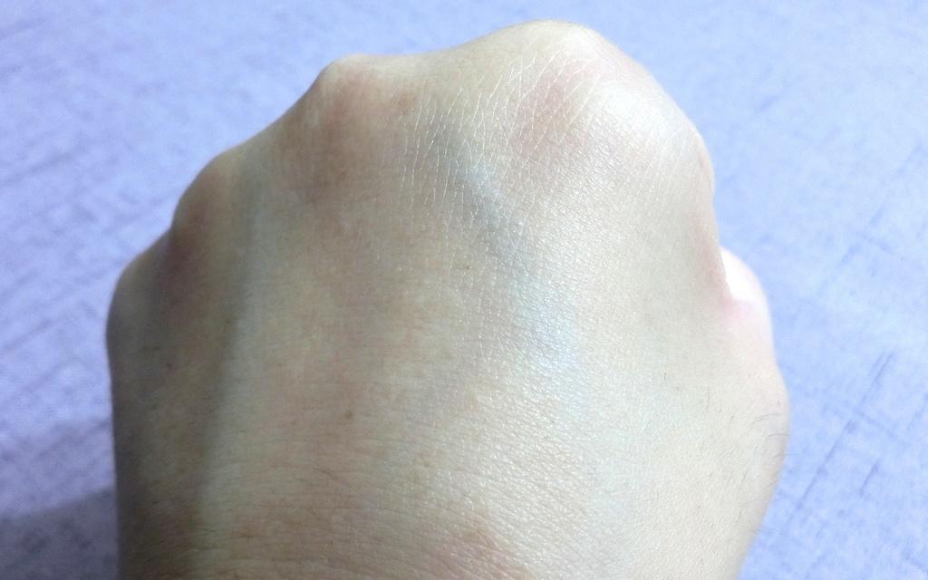 KO抗痘-5.JPG