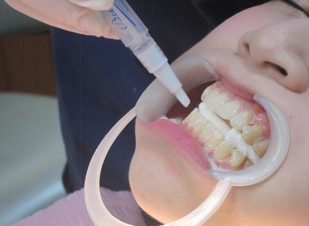 牙齒冷光美白亞德-11.JPG