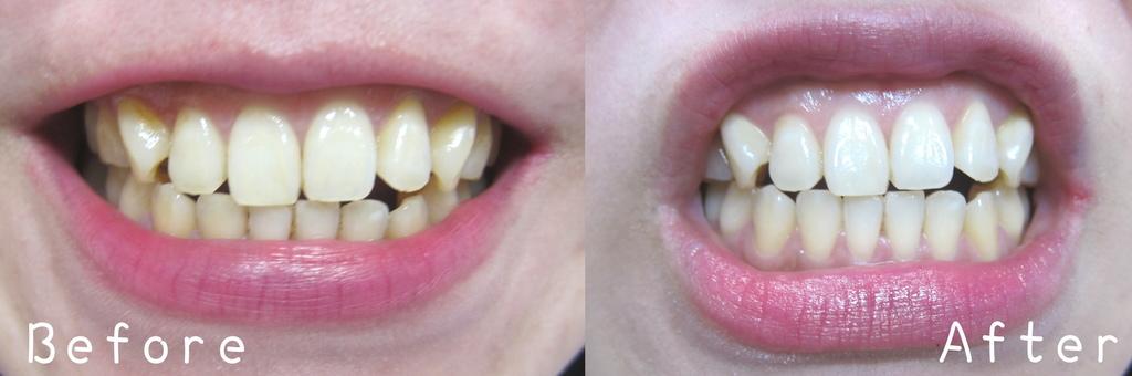 牙齒冷光美白亞德-16.jpg