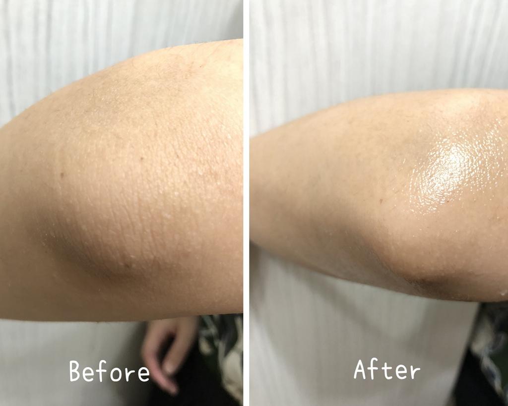 QV重度修護乳膏 -9.jpg