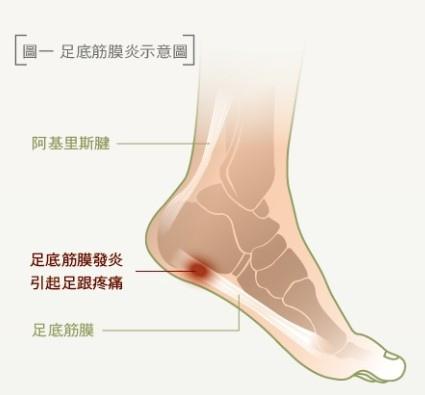 足底筋膜炎示意圖