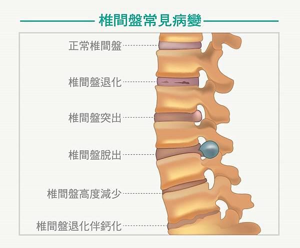 椎間盤病變