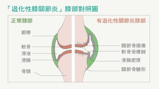 退化性膝關節炎
