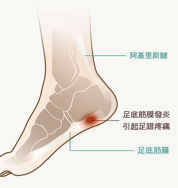 足底筋膜炎示意