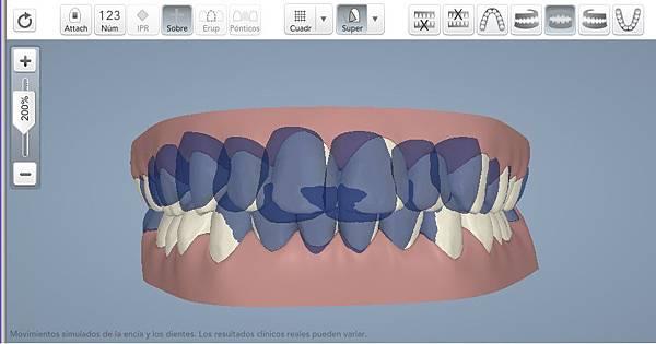3-linea-media-centrada-invisalign-murcia-ortodoncia-velezylozano-final-superposicion-clincheck