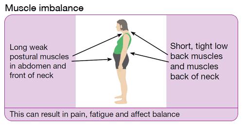 posture-muscle-imbalance-p14-450