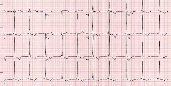 WPW EKG