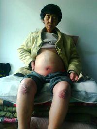 2011-2-27-minghui-persecution-193332-0.jpg