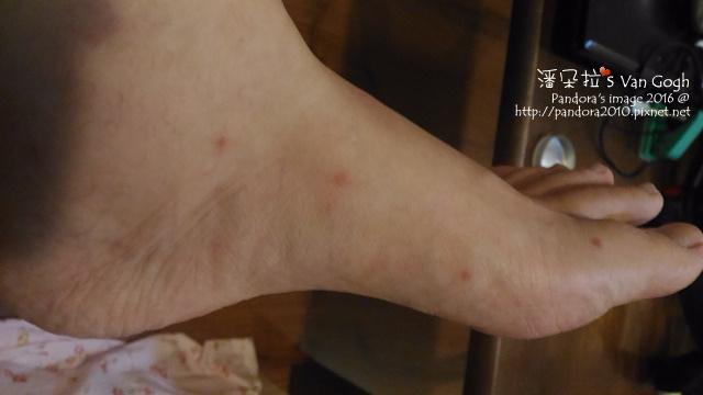 2016.08.21-蚊子很兇.jpg