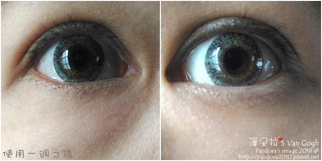 2018.02.26-(StriVectin)超級皺效眼霜。使用一週