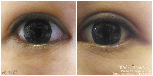 2018.02.26-(StriVectin)超級皺效眼霜。使用前.jpg