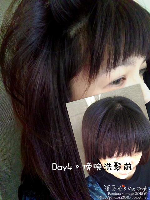 2018.03.28-(Syoss絲蘊)植萃頭皮養護護理膜。Day4洗髮前.jpg