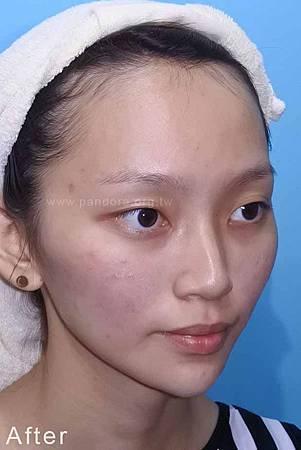2015-07-09 玻尿酸下巴+蘋果肌+肉毒瘦小臉 後 05.JPG