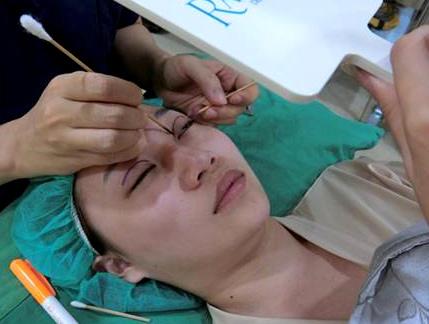 縫雙眼皮 推薦
