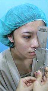 台中隆鼻術前-1