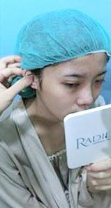台中隆鼻術前-2