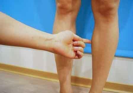 台中肉毒瘦小腿