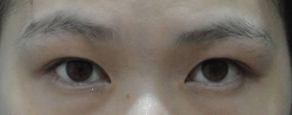 台中-縫雙眼皮