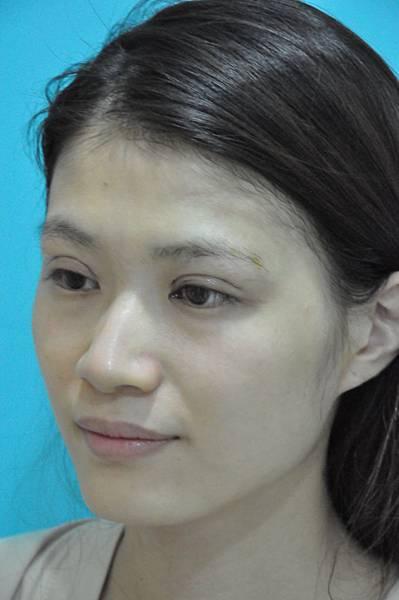 2014-10-08 縫雙眼皮 後 04.JPG