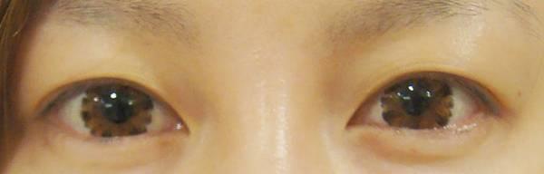 台中縫雙眼皮