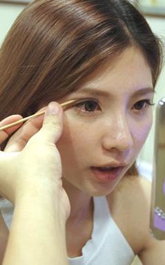 雙眼皮諮詢