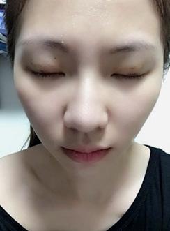 雙眼皮手術 術後