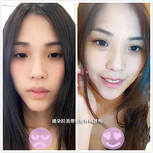 唇整形術前術後比對照片分享