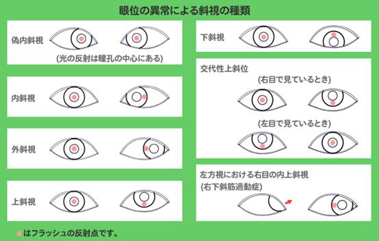 痙攣 左目 まぶたぴくぴくは何科?緊急受診かわかる5つの知識【医師が解説】