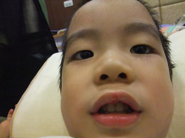 上嘴唇腫起來(3y8m5d)(2010.06.10)