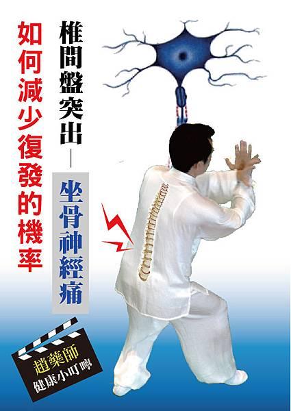 0813椎間盤突出-坐骨神經痛-01.jpg