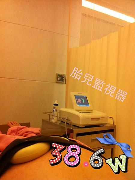38.6胎兒監視器