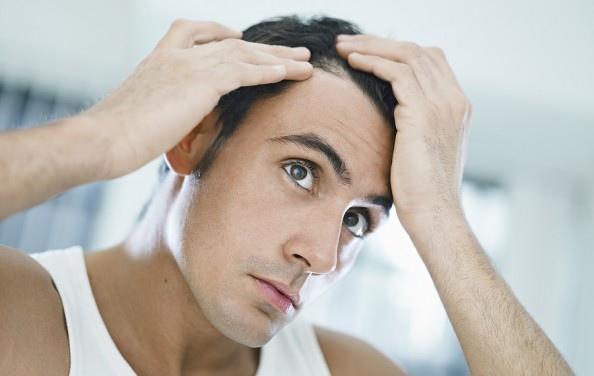 androgen alopecia