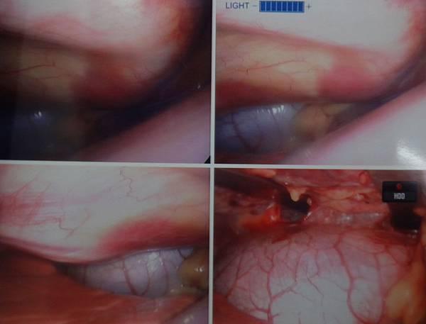 胸腔鏡可見矯板撐起胸壁心臟不再受壓迫